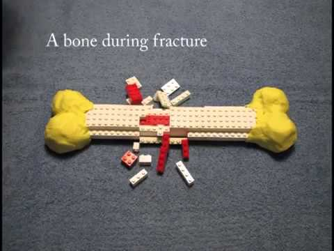 ▶ A stop animation film about bone morphogenetic protein BMP and fracture healing   YouTube