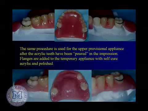 DENT 718: Repairing complete and partial dentures