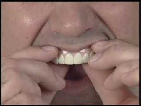 Imako Cosmetic Teeth® Fitting Instructions