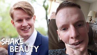 Cancer Ate My Jaw Away | SHAKE MY BEAUTY