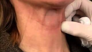 Botox Neck Lift - in Phoenix | Scottsdale Arizona