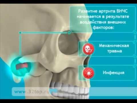 заболевания височно-нижнечелюстного сустава стоматологическая ортопедия