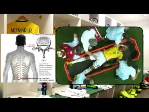 Neymar injury ends his career World Cup,VIDEO explain why and how it happened