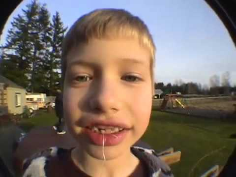 How to pull out a tooth with a rocket...