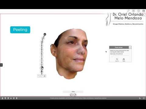 dr-oriel-orlando-melo-mendoza-prodecimientos-faciales