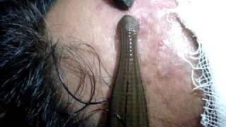 ඔබත් මේවගේ ආයුර්වේද ප්රතිකාර ක්රමයකට කැමතිද ... Leech therapy in Ayurveda .MPG