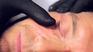 Male fullface treatment of Steve with Restylane and Azzalure