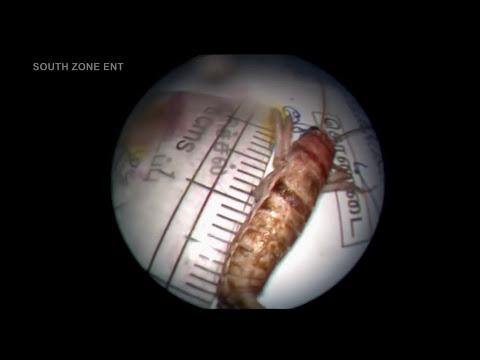 Le sacan un insecto vivo de dentro de la oreja | Castellano 2013 HD