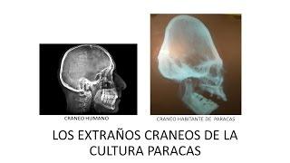 IMPACTANTE LOS  CRANEOS DE LOS GIGANTES  DE LA CULTURA PARACAS