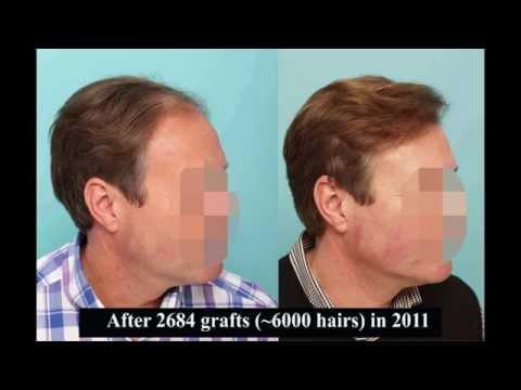 Harry Pugh Hair Transplant Surgery 2648 grafts