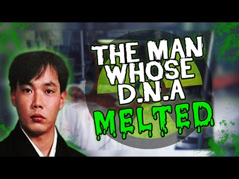 The Man Whose D.N.A MELTED!