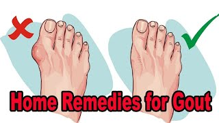 Home Remedies For Gout - 5 Gout Home Remedies