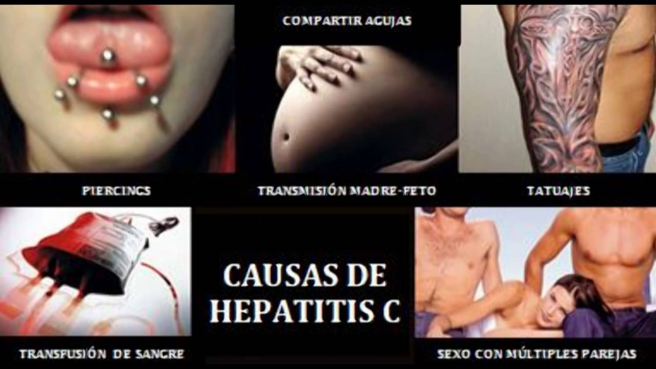 How to Find the Right Hepatitis C Treatment for You