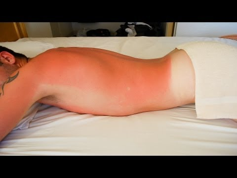 Can a Sunburn Cause Skin Cancer? | Skin Cancer