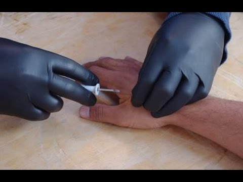 ABC NEWS: PEOPLE ALL OVER WORLD BEING IMPLANTED WITH RFID CHIP (MARK OF THE BEAST)