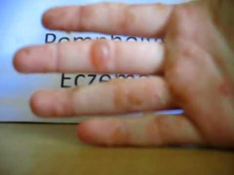 Psoriasis vs Eczema Pictures - Healthline