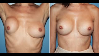 Breast Revision Plastic Surgery Beverly Hills by Dr. Cat