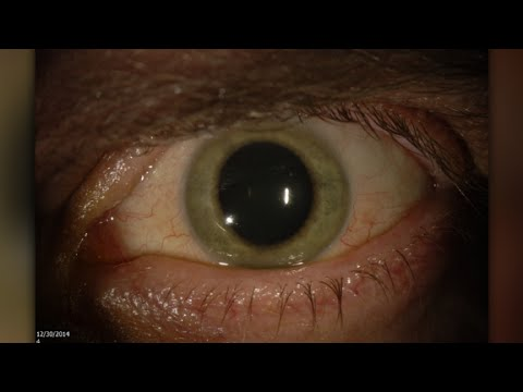 Doctor finds Ebola virus in his eye
