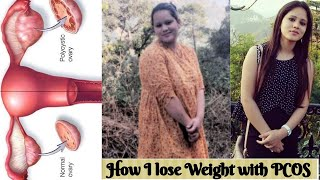 How I lose weight with PCOS (Poly cystic Ovaries Syndrome)