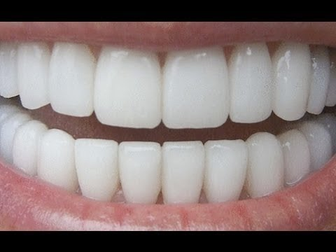 How To Have Natural White Teeth in less than 5 minutes