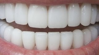 download lagu How To Have Natural White Teeth In 3 Minutes gratis