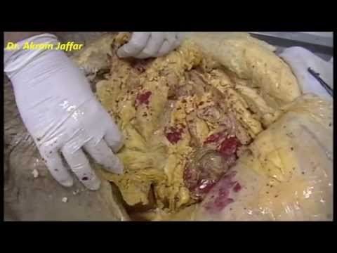 Where does abdominal fat accumulate? (Dissection)