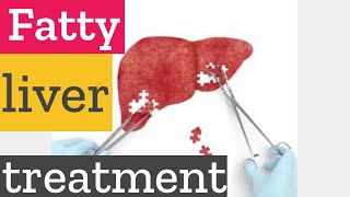 How to lose belly fat naturally with fatty liver treatment?
