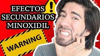 EFECTOS SECUNDARIOS DE MINOXIDIL - J.M. Montaño