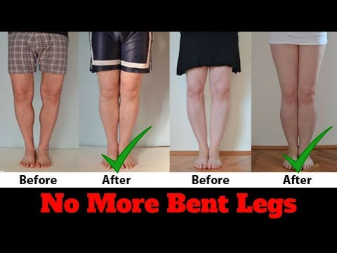How to fix bow legs   Say goodbye to bowlegs FOREVER - clickbank review