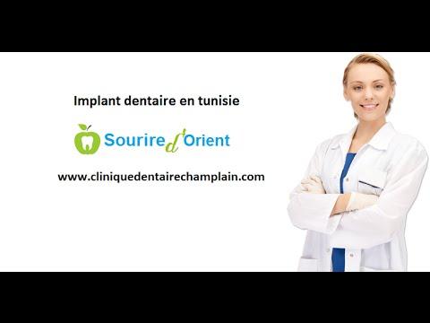 la pose d'implant dentaire en tunisie: meilleure solution