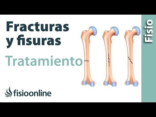 Fracturas menores y fisuras - Inmovilización relativa y tratamiento alternativo.