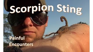 Painful Encounters: The Bark Scorpion