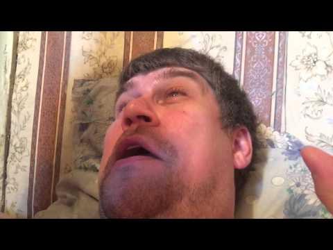 Шугаринг-сахар против волос в носу часть 2.