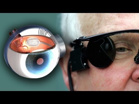 Bionic Eye Cures Blindness