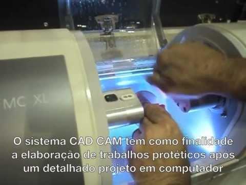 Tecnologia 3D para dentes