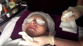 NeoStrata Glycolic Skin Peel - Outline Clinic, Droitwich, Worcestershire UK