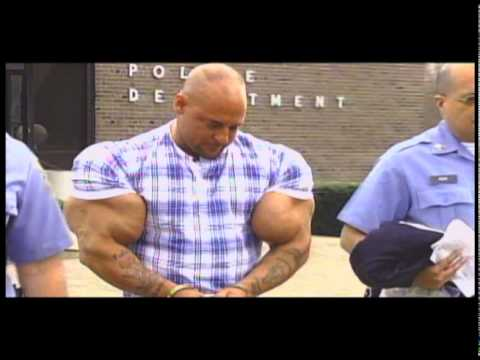overuse of steroids side effects