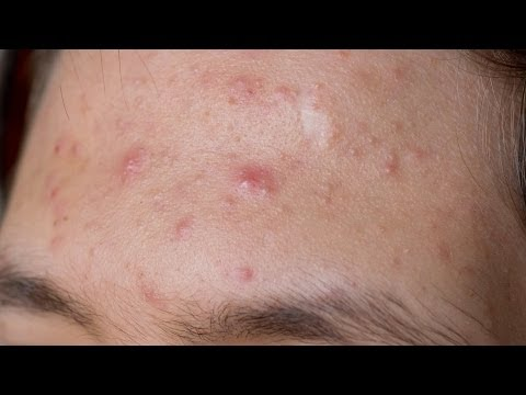 What Are Alternatives to Accutane? | Acne Treatment