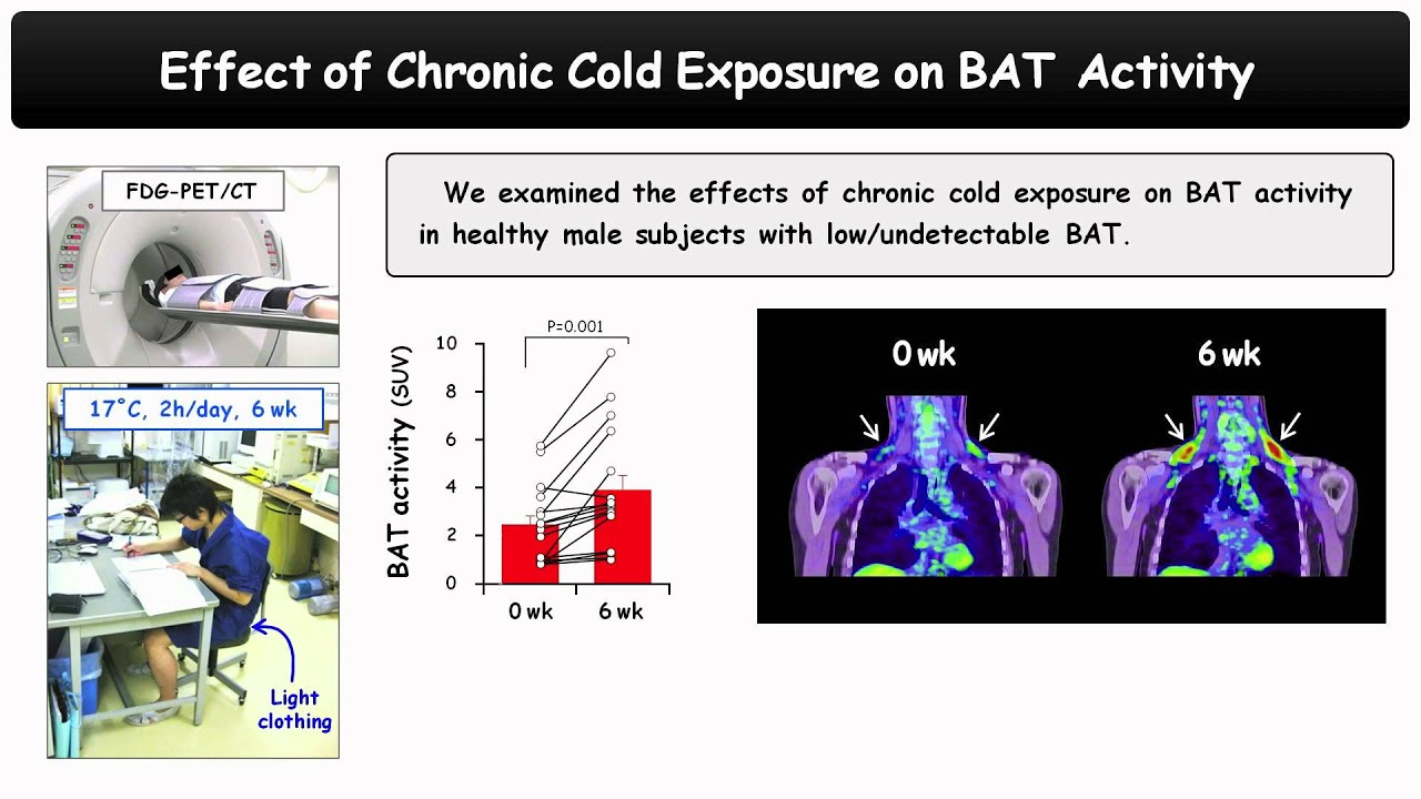 Thyroid Hormone Activates Brown Adipose Tissue and