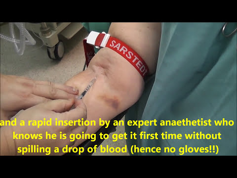 Venflon (intravenous cannula) insertion . Few examples