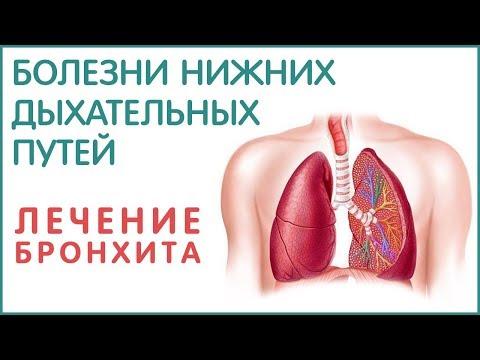0 - Бронхіт і пневмонія: відмінності, лікування, може бронхіт перейти в запалення легенів