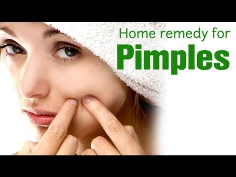 Beauty Tips - Home Remedies for Pimples - Dr.Divya