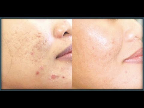 How to Lighten Skin Discoloration Caused by Acne