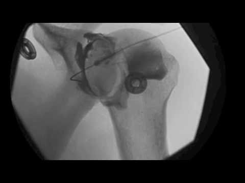 Video Glenohumeral Shoulder