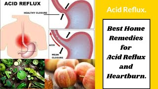 Best Home Remedies for Acid Reflux and Heartburn
