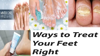 Way to treat your feet right