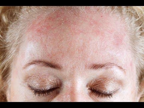 Cortar la psoriasis con la piel