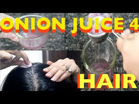 Onion and hair growth - How to use onion juice the right way to prevent hair loss/extreme regrowth