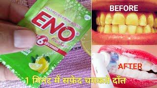 Eno का ये छोटा सा उपाय आपके गंदे पिले दांतो को चमका देगा //teeth whitening.