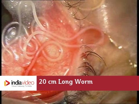 Surgical removal of 20 cm long worm in the human eye, first ever recorded on video